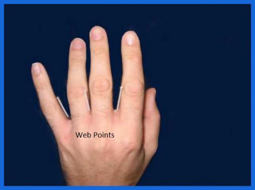 student_pic_0008_orthopaedic_acupunture_teaching_clinic