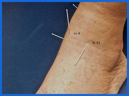 student_pic_0029_ankle_injuries