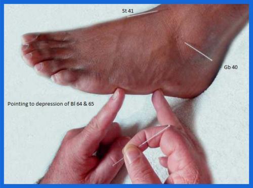 student_pic_0030_acupuncture8