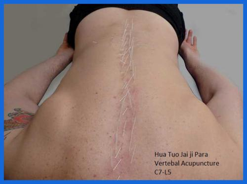 student_pic_0040_acupuncture_spinal