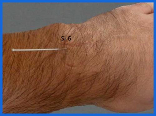 student_pic_0046_acupuncture_hand2